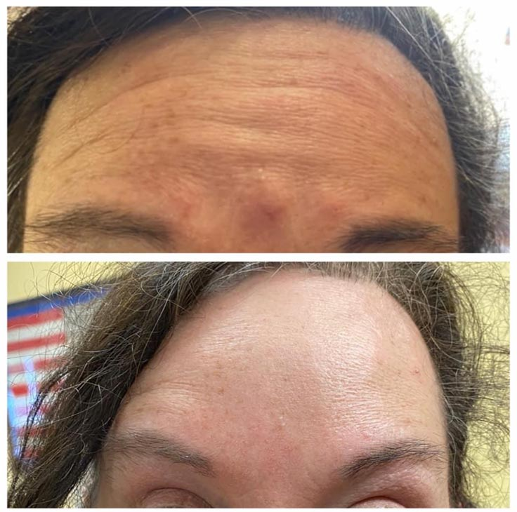 Chiropractic Superior WI Botox Before and After