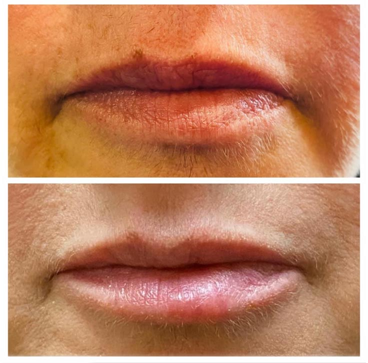 Chiropractic Superior WI Lip Injection Before and After